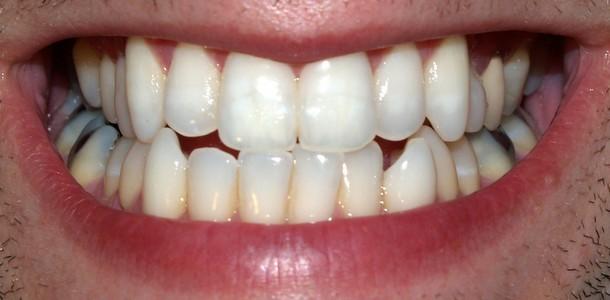 O idee despre dinti
